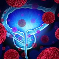 Prostate Gland Cancer