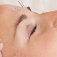 Facial Acupuncture Treatment