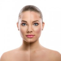 Halo Laser Treatment for Skin Discoloration