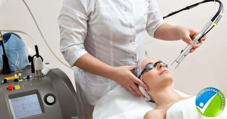 Laser Skin Resurfacing Cost