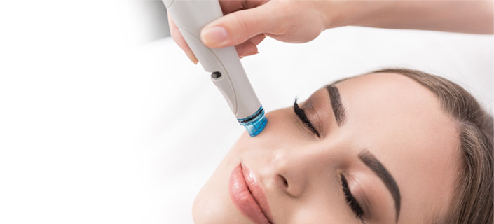 Radio frequency treatments for skin tightening