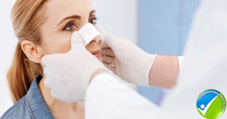 Skin Reconstruction Procedure