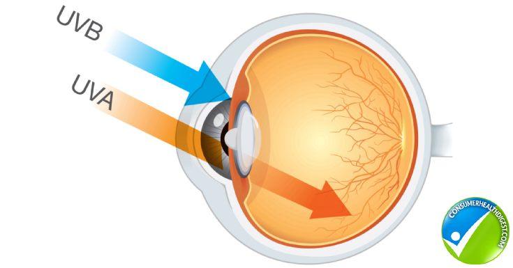 UV Rays Cause Eye Problems