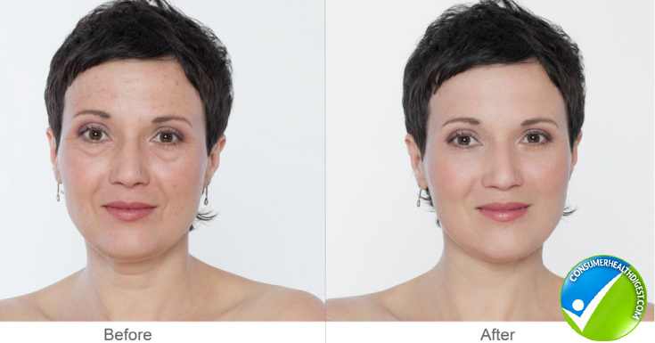 Who should go for laser resurfacing