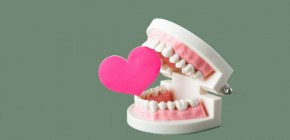 Dental Tartar Heart Attack