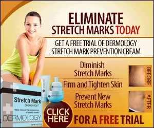 Advantages of Dermology Stretch Mark Prevention