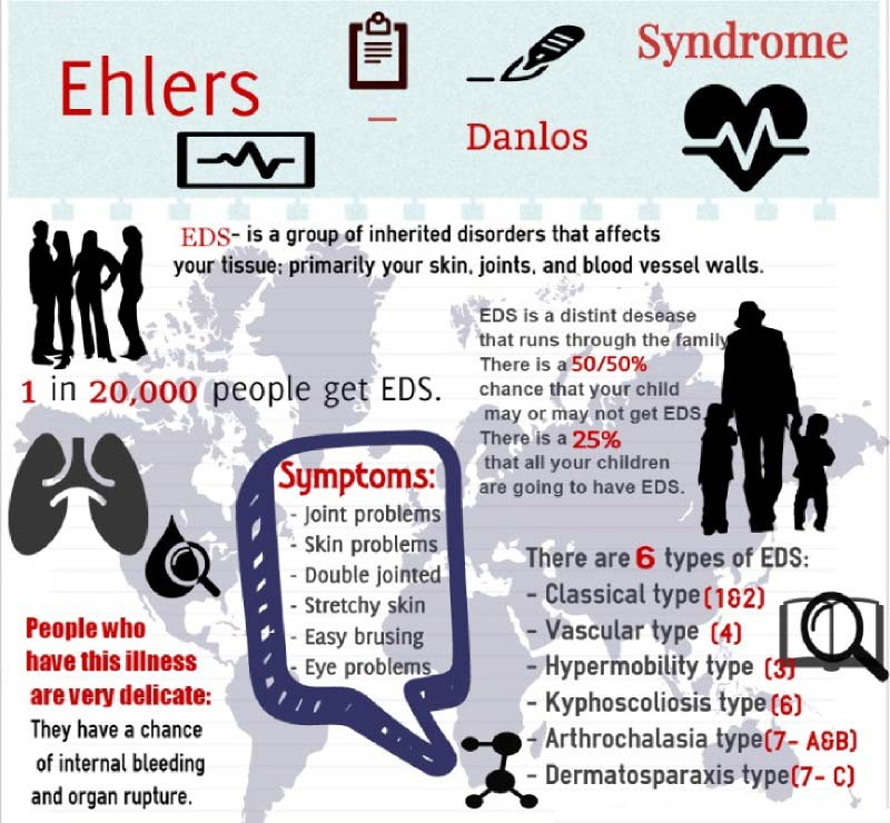 Types of Ehlers-Danlos Syndrome