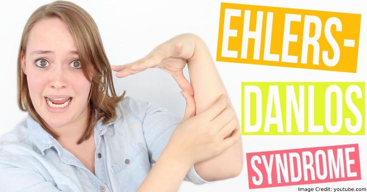 Ehlers-Danlos