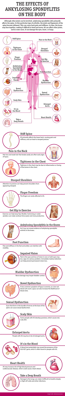 Effects of Ankylosing Spondylitis