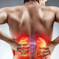 More Americans Have Kidney Stones