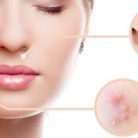 Top Rated Acne Products