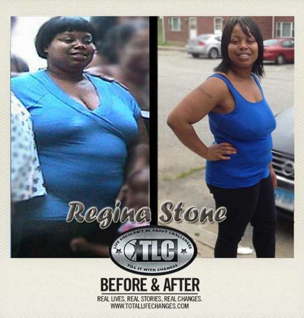 Iaso Tea Before and after result