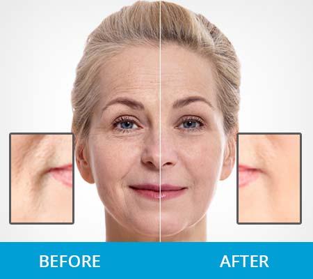 DermaSet Before After