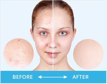 Clear Pores Before After