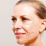 Facelift Procedure Steps